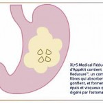 Avis sur XLS Medical Specialist Appetite Reducer (XLS Medical Réducteur Appétit) – Avec Commentaires Clients
