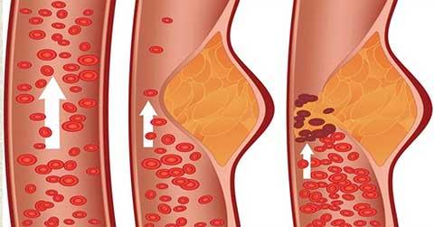 La niacine peut en plus améliorer la croissance musculaire